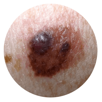 inconsistent color of mole - abcde skin cancer sign