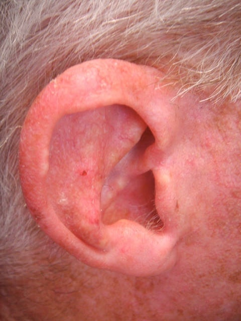 actinic keratosis skin cancer affecting the ear