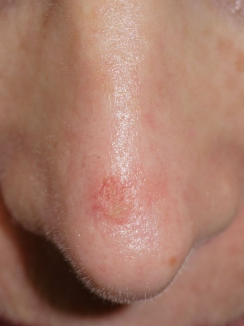actinic keratosis skin cancer affecting the nose