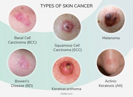 six skin cancer types