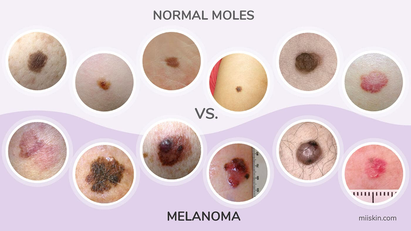 normal moles vs cancerous moles picture