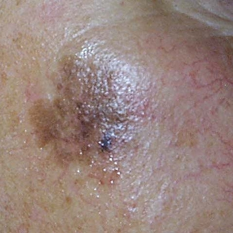 Skin cancer might cause the skin to darken