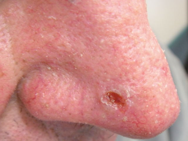 Basal Cell Carcinoma Symptoms Types And Pictures