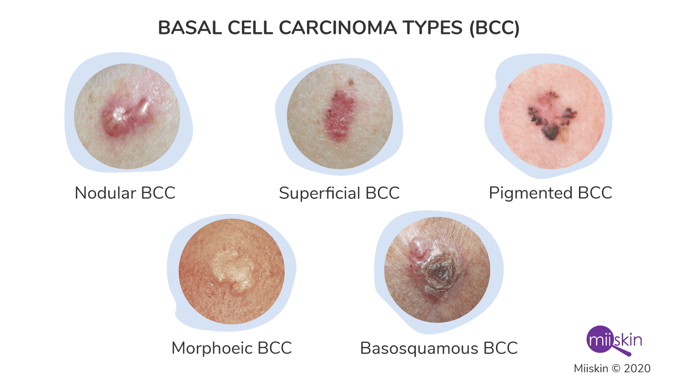 five basal cell cancer types pictures