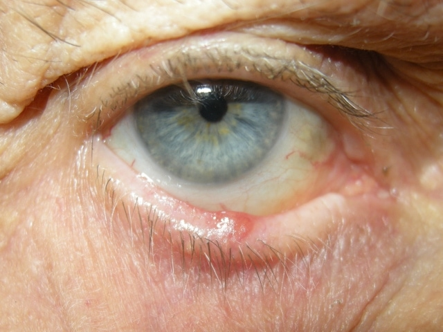 photo bcc on lower eyelid