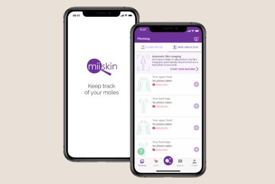 keep track of your moles with miiskin skin imaging