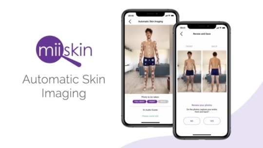 miiskin app feature automatic skin imaging