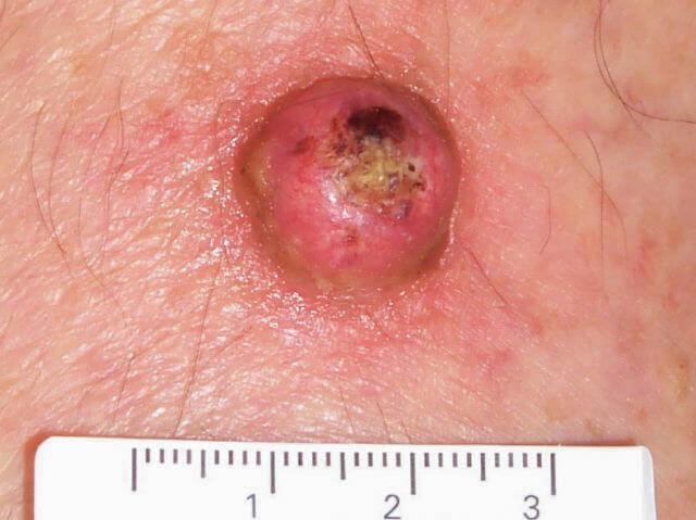 keratoacanthoma cancer