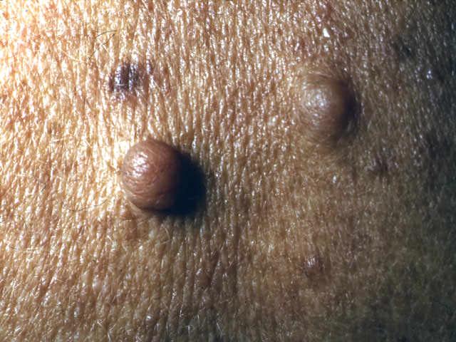 neurofibroma benign nerve tumor