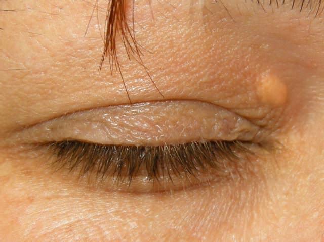 skin xanthoma