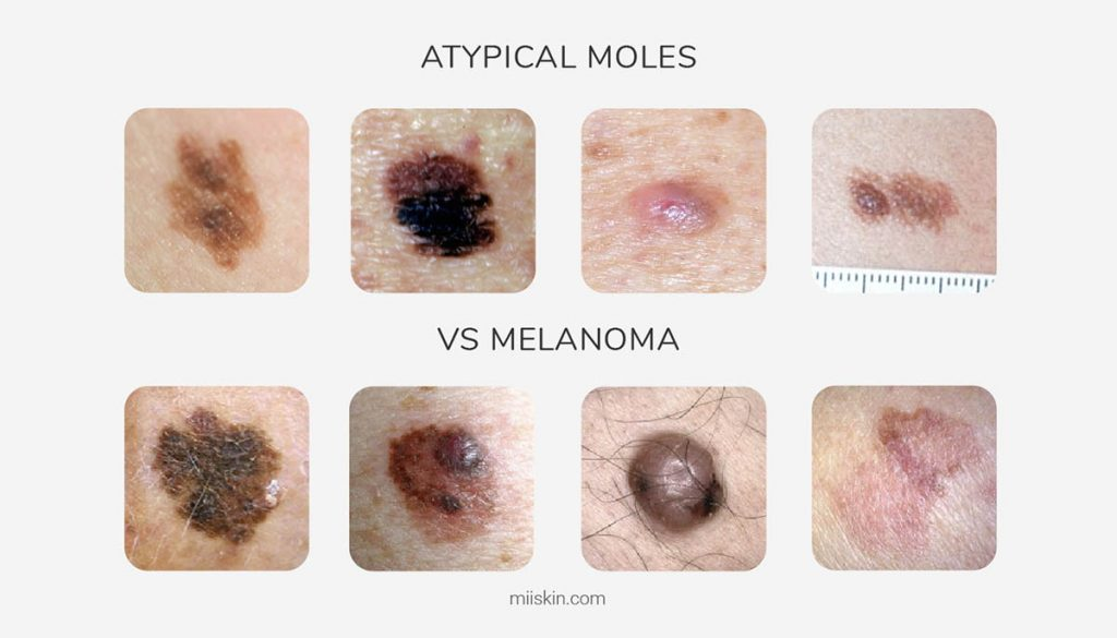 atypical dysplastic nevus vs melanoma skin cancer images