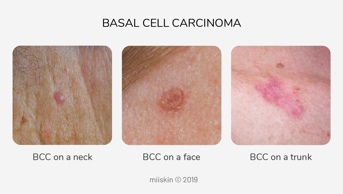 images - basal cell carcinoma skin cancer on the neck, face and trunk