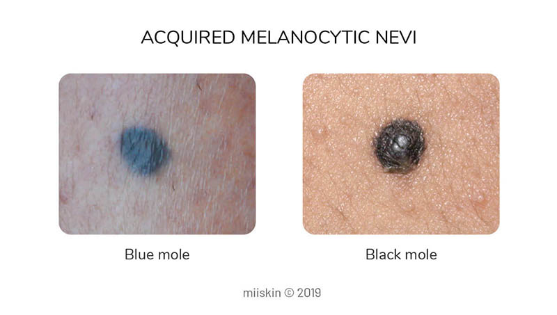 black dark blue moles - types of acquired melanocytic nevi