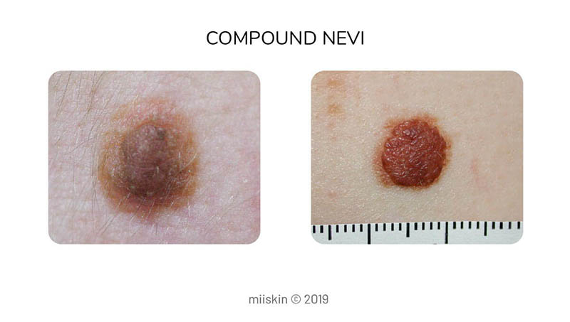 compound nevus type of congenital melanocytic mole