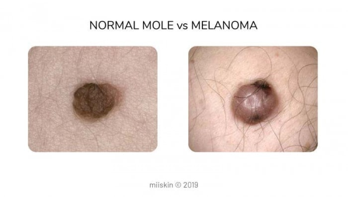 difference between mole and melanoma picture