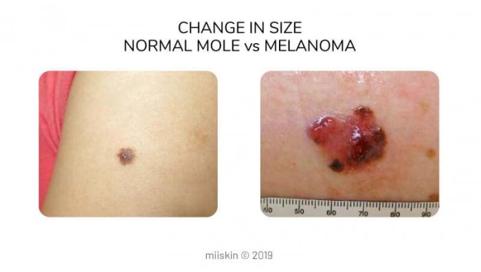 mole vs melanoma differences in size