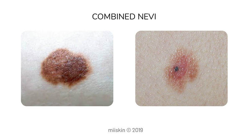 combined nevus - type of congenital melanocytic mole