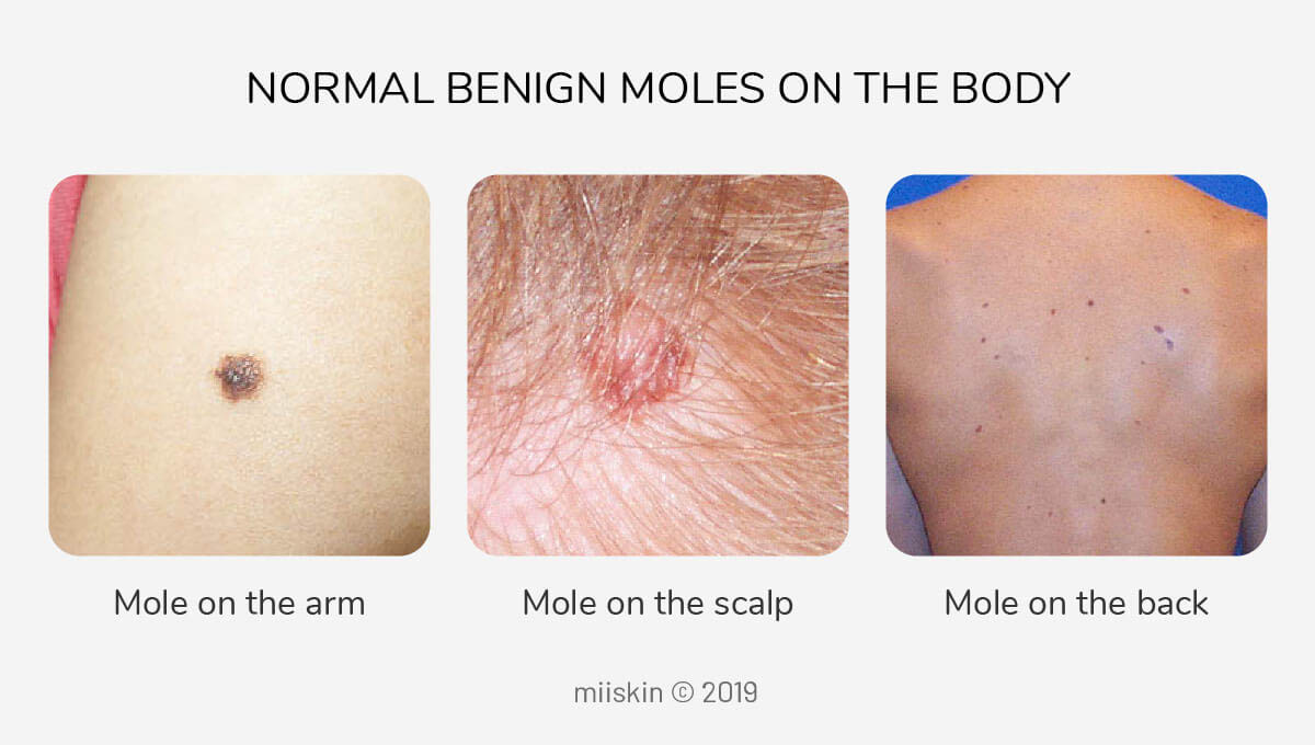 normal moles on the arm, scalp, back