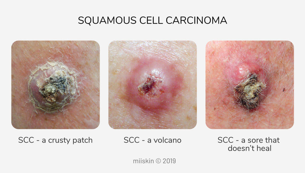 scc- squamous cell carcinoma skin cancer photos