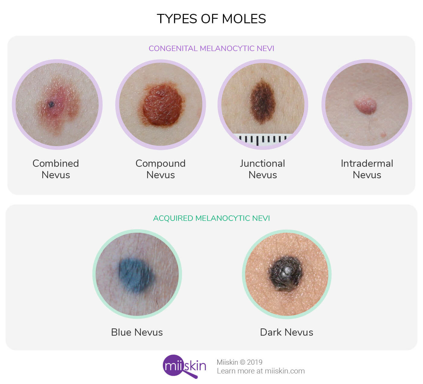 moles and birthmarks types